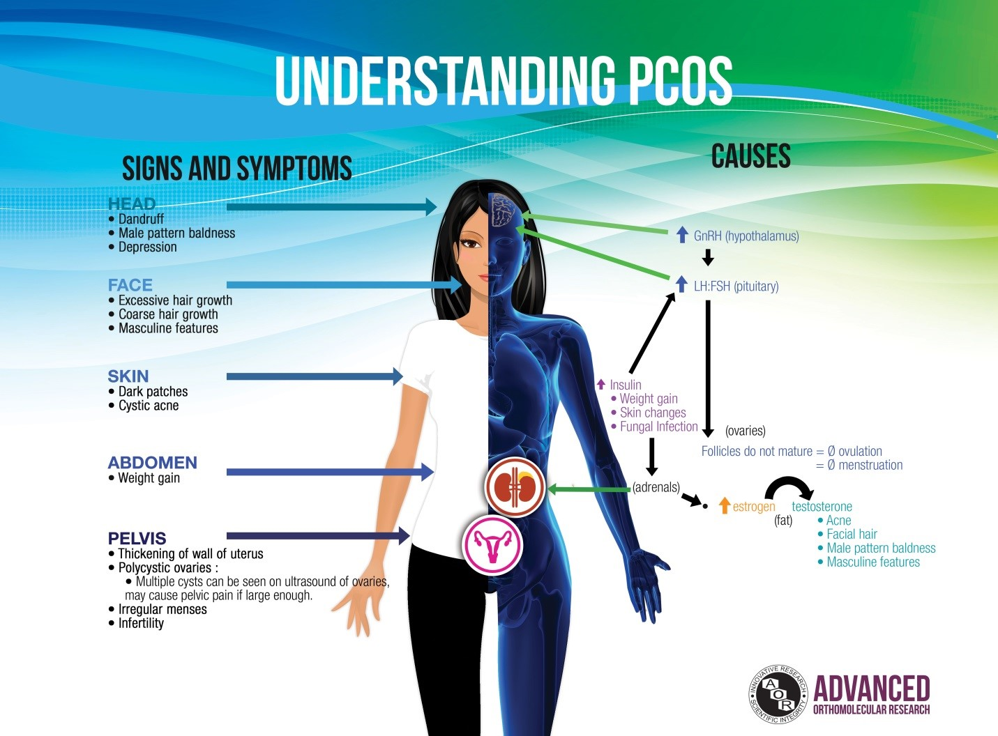 Acupuncture And Polycystic Ovarian Syndrome Pcos